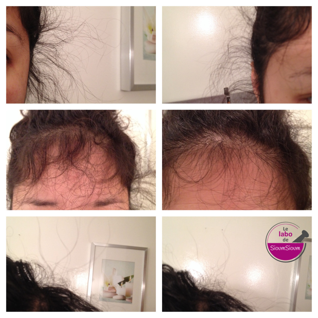 cure vitamine chute cheveux